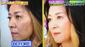 ジャガー横田さんの治療後の画像1