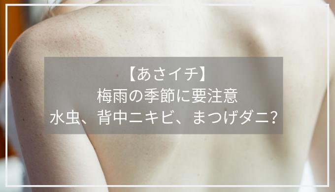【あさイチ】 梅雨の季節に要注意 水虫、背中ニキビ、まつげダニ?