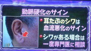 耳たぶにできたシワはサイン