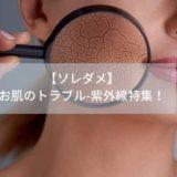 【ソレダメ】-お肌のトラブル-紫外線特集!