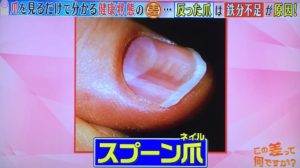 スプーン爪の画像
