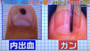 爪の黒い点