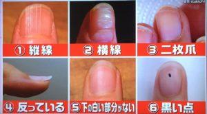 爪の6つの症状