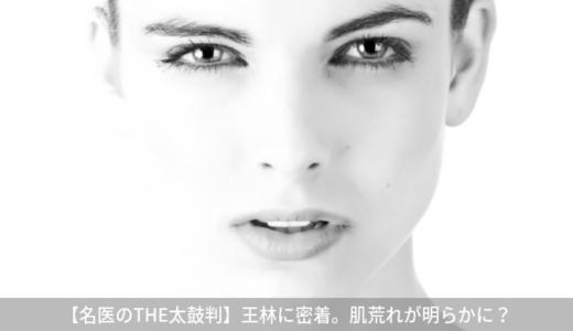 【名医のTHE太鼓判】王林さんに密着!王林の肌荒れ対策は正しい?(9月2日)