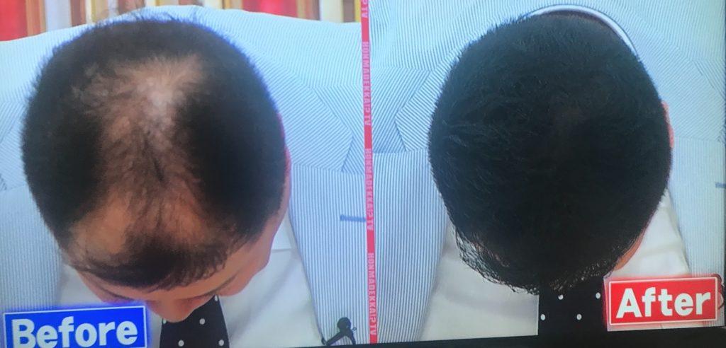 小杉さんの頭髪のビフォーアフター